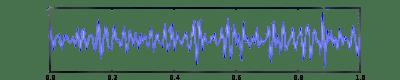 onde gamma-hypnose caen